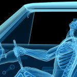 human anatomy in a car crash