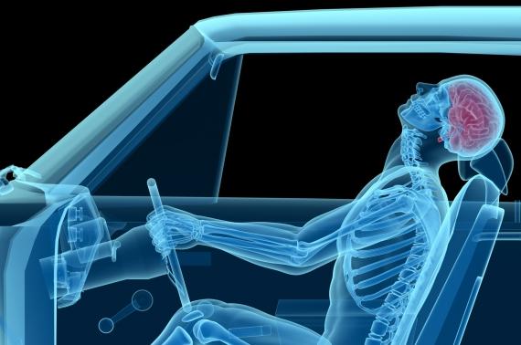 human anatomy in a car crash